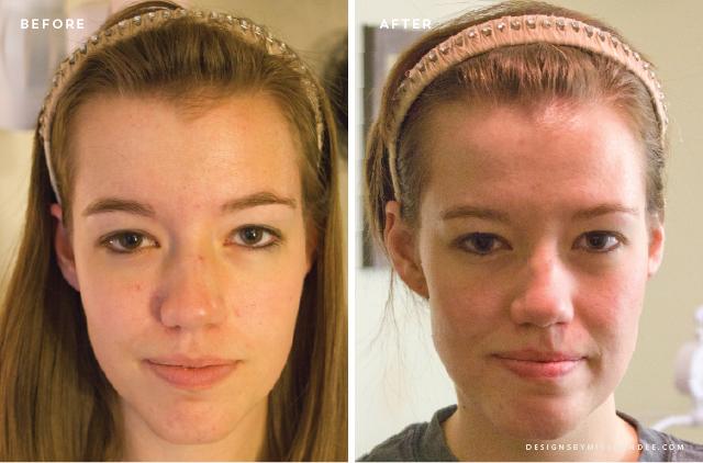 creme anti tache cicatrice acné rapidement recette